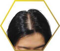 androgen alopeci symptomer