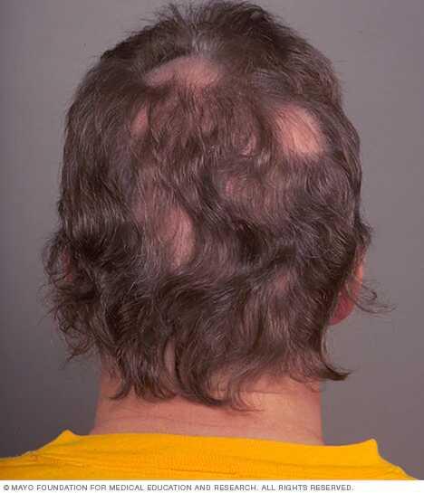 mister hår flekkvis